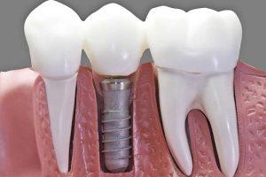 Why do dental implants fail